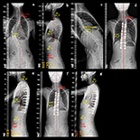 """Journal Article (Med Sci Monit 2021; 27:e929149) """"A Retrospective Study of Factors Associated with Restoration of Thoracic Kyphosis in 43 Patients with Adolescent Idiopathic Scoliosis with Lenke Type 1 Curvature."""""""
